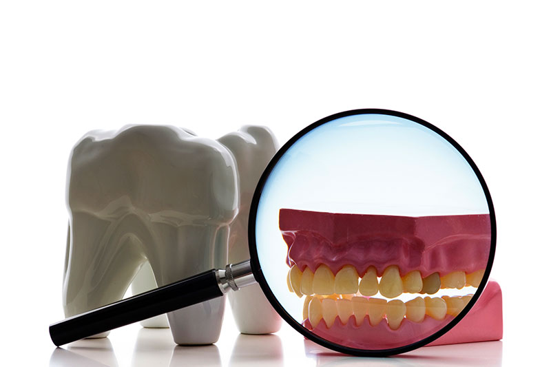 Root Canal in South San Francisco